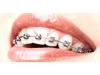 Связь ортодонтического лечения с имплантацией ...
