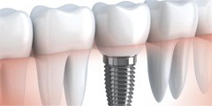 Удаление и имплантация зубов